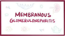Membranous Glomerulonephritis (Membranous Nephropathy)