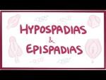Hypospadias & epispadias - causes, symptoms, diagnosis, treatment, pathology