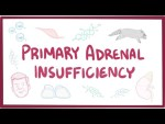 Primary adrenal insufficiency (Addison's disease) - pathology, symptoms, diagnosis, treatment