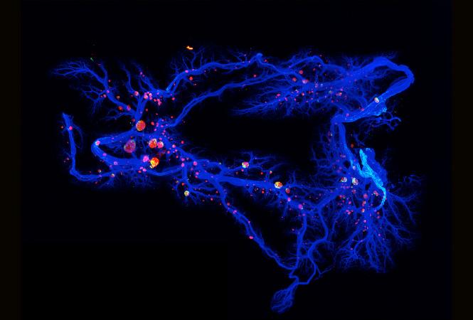 The Pancreatic Milky Way. By Jürgen Mayer, Centre for Genomic Regulation, Barcelona.