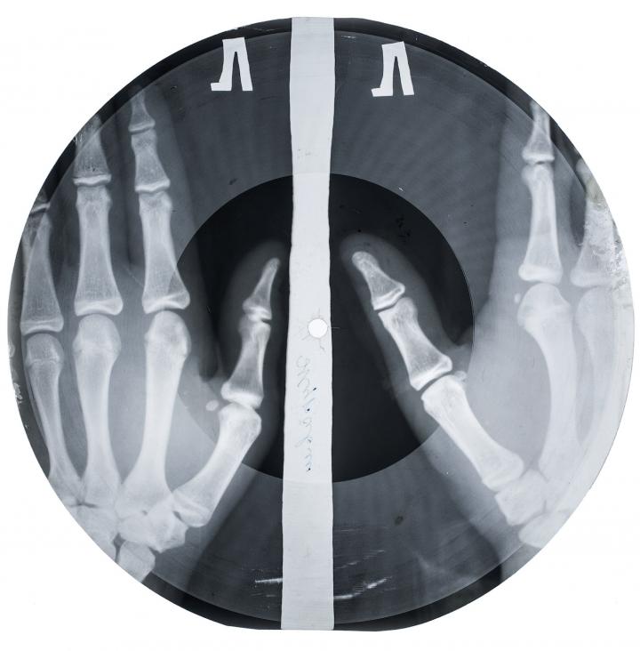 Example of an x-ray record (all photos courtesy X-Ray Audio Project/Paul Heartfield).
