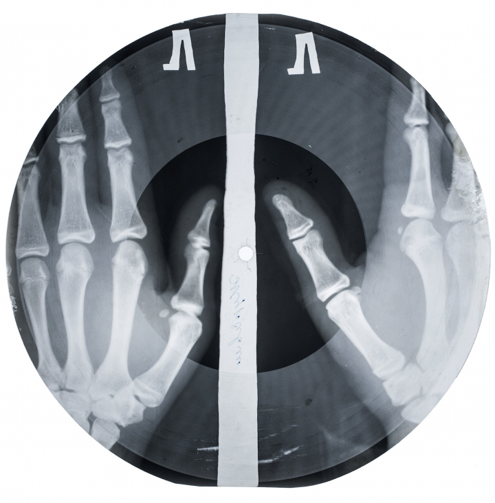 Example of an x-ray record (all photos courtesy X-Ray Audio Project/Paul Heartfield).