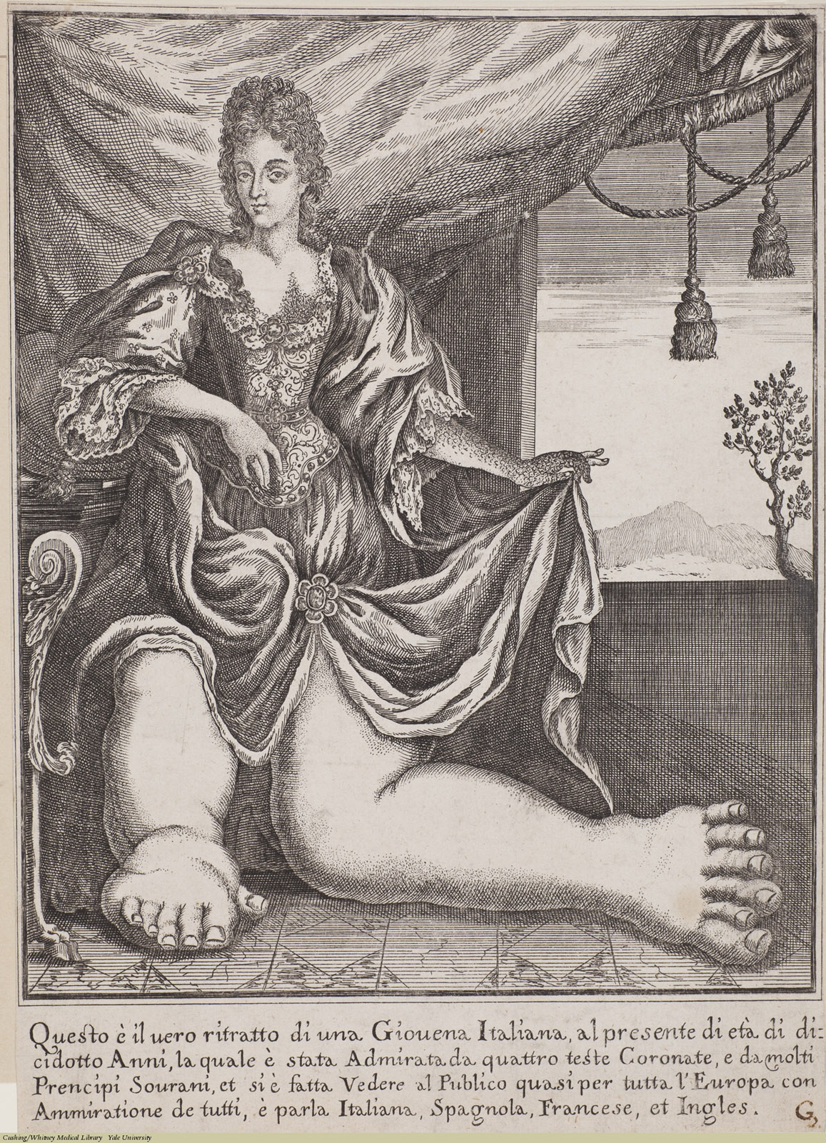 Woman with Elephantiasis, Laid, Anonymous, Italian, 18th Century.