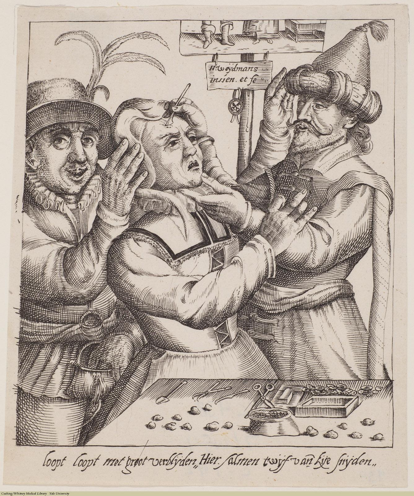 Loopt loopt met groot... [Operation for Stones in the Head], Laid, Claes (Nicolas) Jansz Weydtmans.
