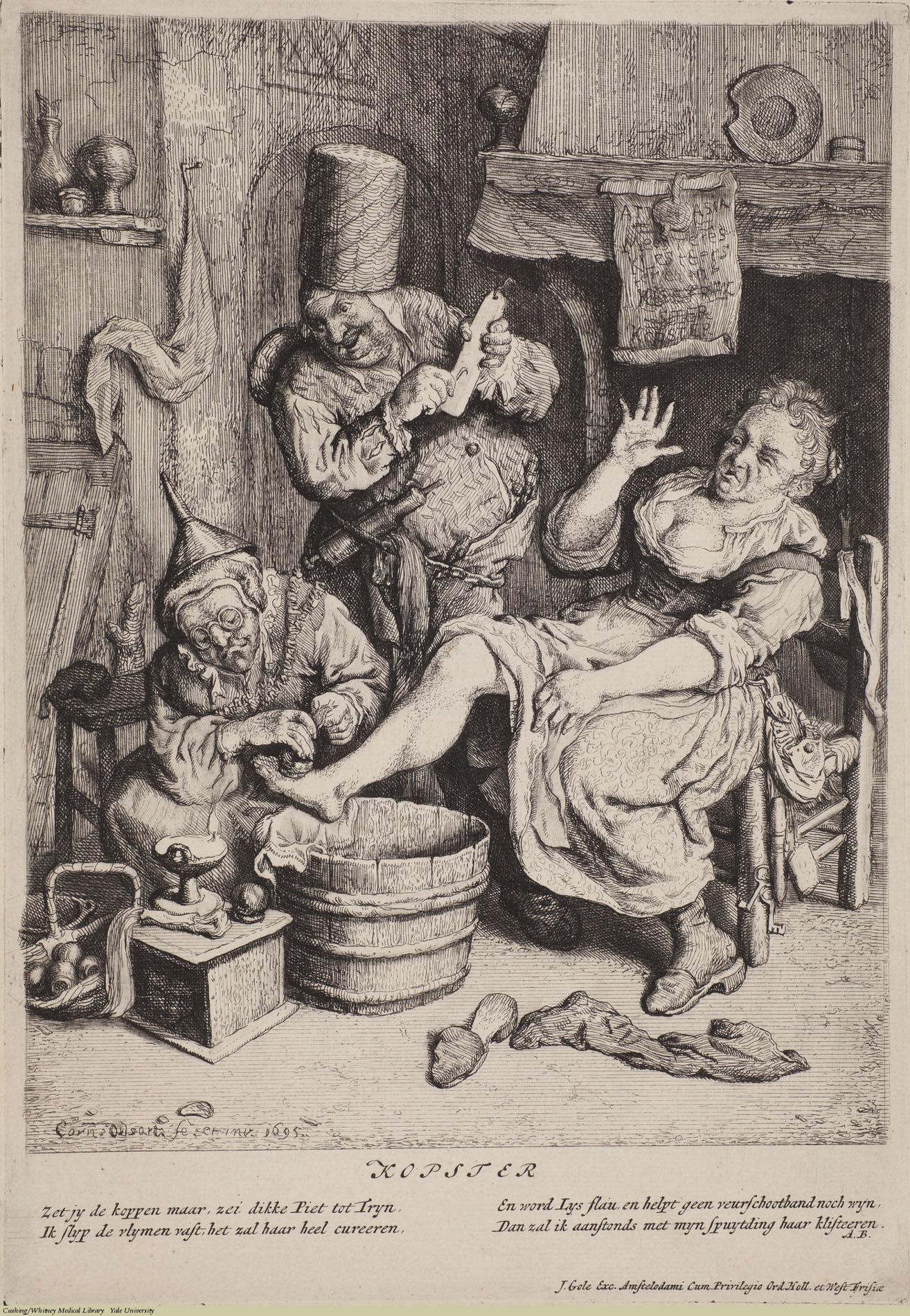 Kopster. Cornelius Dusart, Laid, 1695. Subject: Village Doctors, Phlebotomy, Bleeding Cups, Rural Medicine.