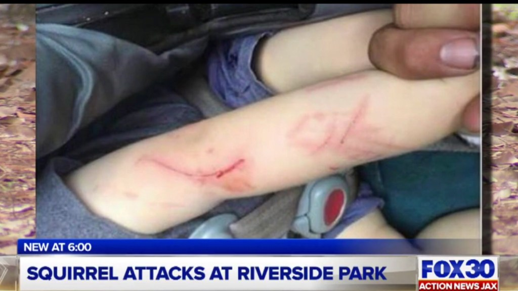 graphic image of child's arm injuries after a squirrel attack.