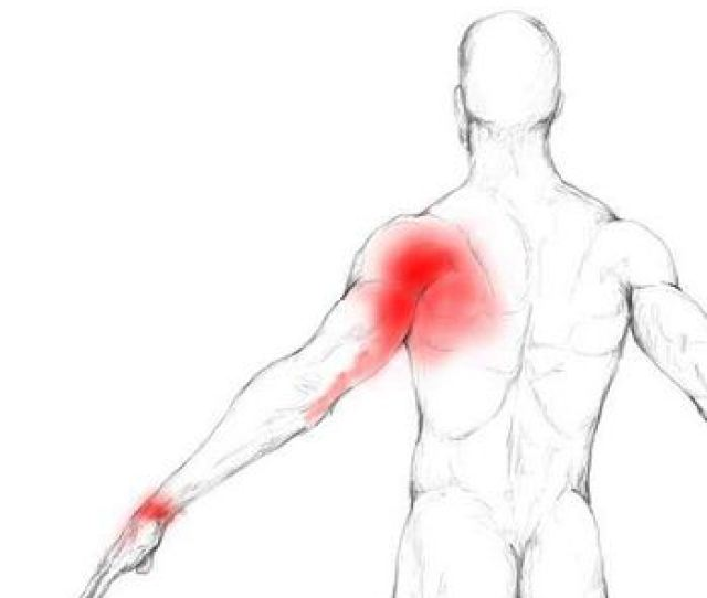 Cervical Herniated Disc Symptoms Shooting Arm Pains
