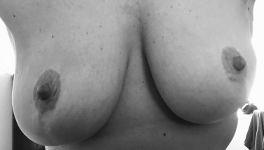 Breast reduction B&W