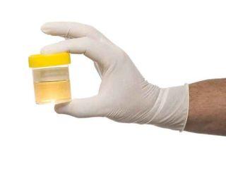 test-urine