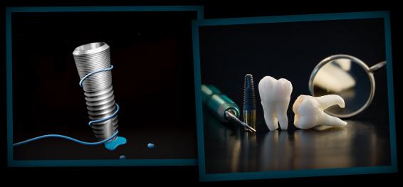 Implanty zębów Kraków