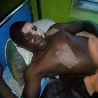 PHOTOS: Two Siblings Stab Man With Broken Bottle