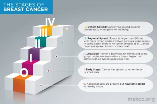 Effective breast cancer treatment for perfect cure 12