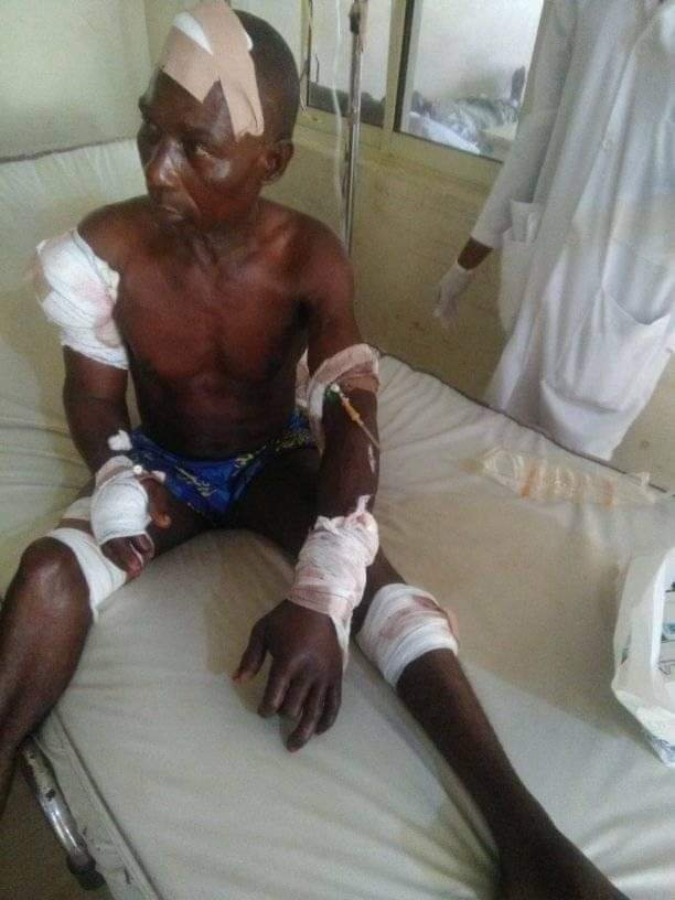 Mob Burnt Young Man Alive For Butchering Father With Cutlass (Photo)