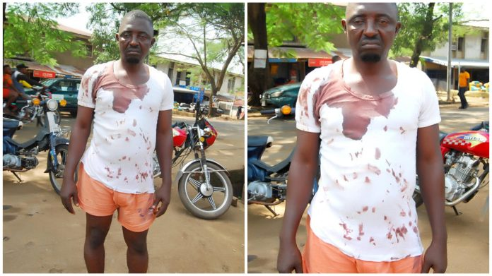 Policemen Brutalise Lawyer in Cross River (Photos)