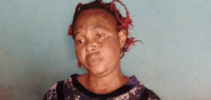 Woman Inflict Serious Injuries On A 12-year-old Boy Over Missing N5000 (Photos)