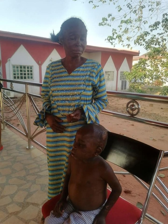 6-year-old Child Abused And Starved By Foster Mother Rescued In Anambra (Photos)
