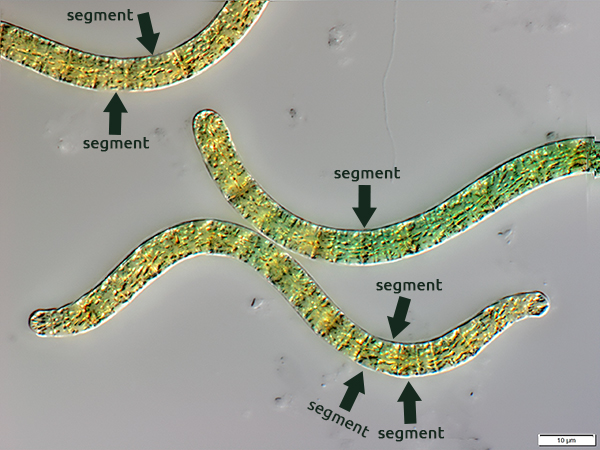 Spirulina at 10 micron magnification - Spirulina under the microscope