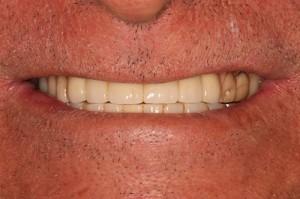Implant Bridge Over Denture - After