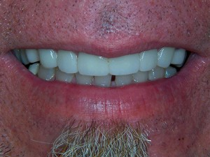 e.max Crowns - After Hollywood Smile!