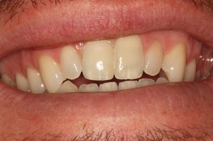 PFZ Crown on Zirconia Implant Abutment - After