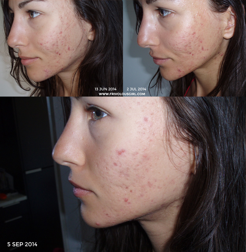 acne progress