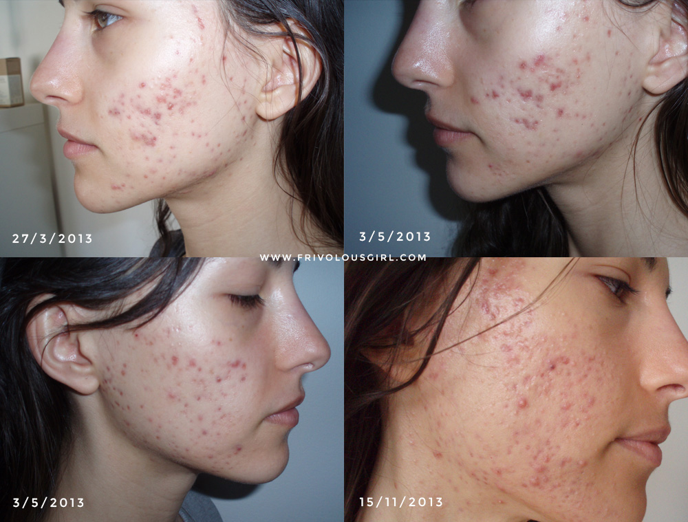 zink acne