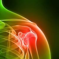 бурсит - воспаление  в плечевых суставах , это очень болезненно !