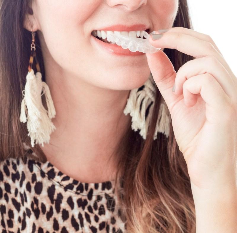 Smile Brilliant teeth whitening tray