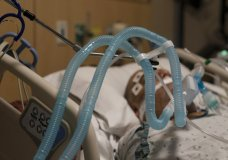 FILE - In this Nov. 19, 2020, file photo, ventilator tubes are attached to a COVID-19 patient at Providence Holy Cross Medical Center in the Mission Hills section of Los Angeles. Across the U.S., the surge has swamped hospitals with patients and left nurses and other health care workers shorthanded and burned out. (AP Photo/Jae C. Hong, File)