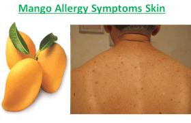 Mango Allergy Symptoms Skin