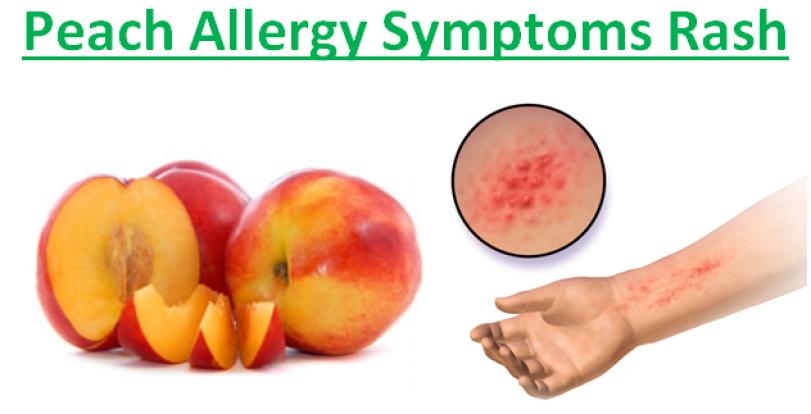 Peach Allergy Symptoms Rash