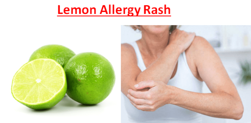 Lemon Allergy Rash