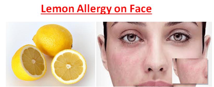 Lemon Allergy on Face
