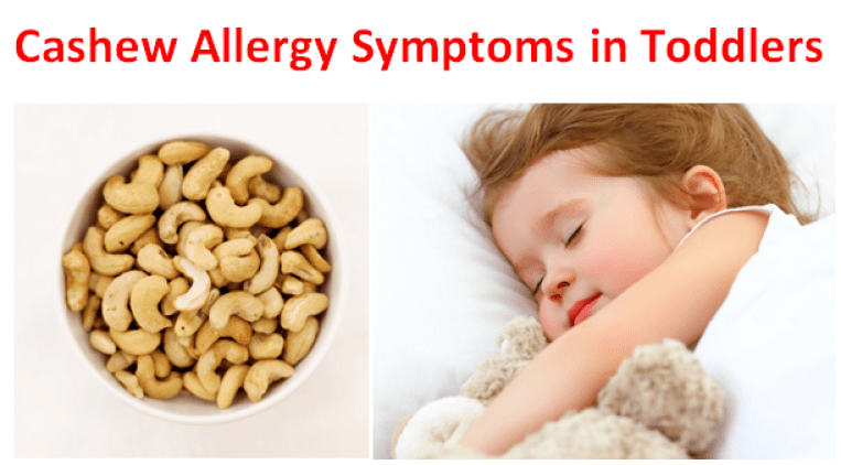 Cashew Allergy Symptoms in Toddlers