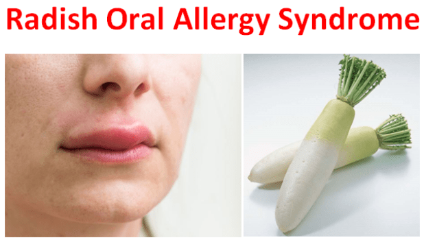 Radish Oral Allergy Syndrome