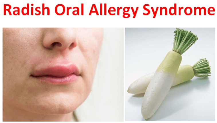 Radish Oral Allergy Syndrome