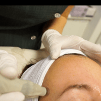 Dermapen treatment mot min vuxen acne