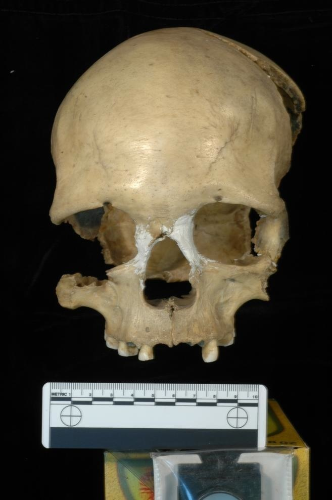 A 35,000-year-old female skull.