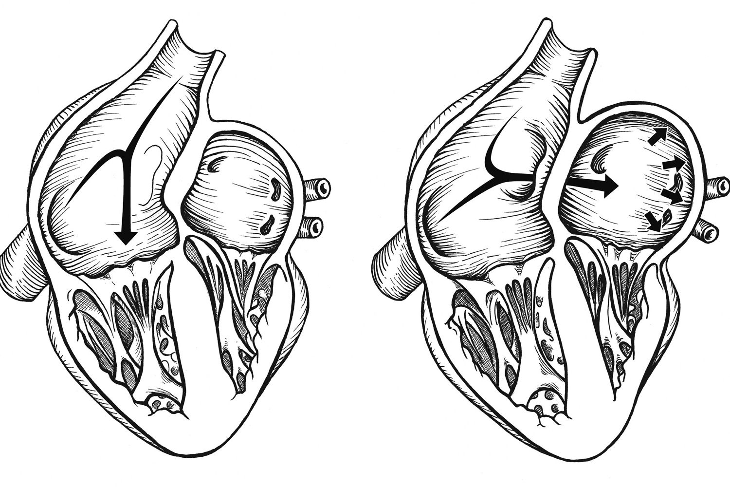 Between Migraines And Patent Foramen Ovale