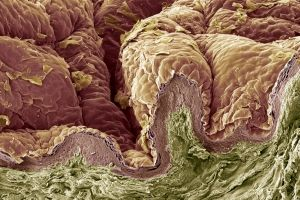 Integumentary System and Skin Layers