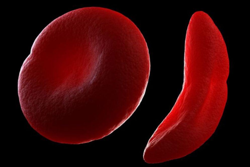 sickle cell norm cell 57b2107f3df78cd39c314506 - Glóbulos Rojos Función y Definición