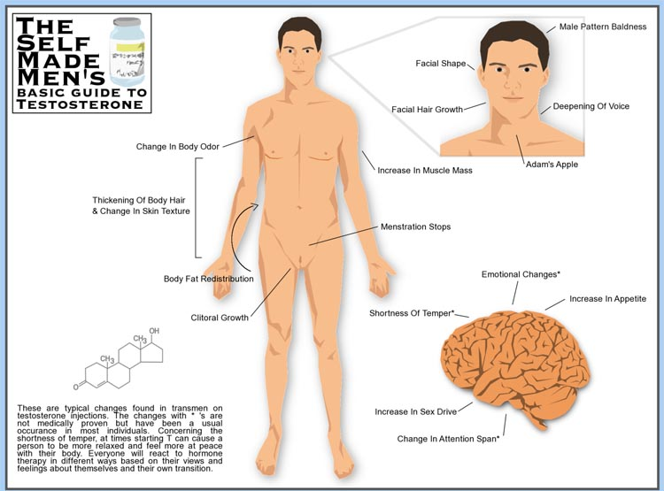 Common changes caused by testosterone in FTM transition