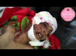 جرائم الحوثي وصالح
