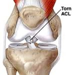 ACL Surgery Seattle, WA