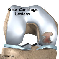Knee Cartilage Injury Treatment