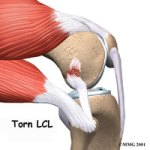 Torn LCL Surgeon in Seattle