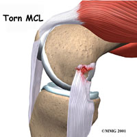 MCL Knee Surgery Seattle