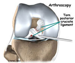 Arthroscopic Knee Repair in Kirkland, WA