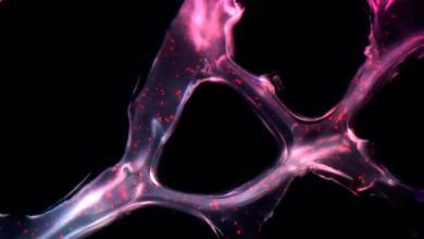 Genera ambiente ácido tumores más invasivos, revela estudio