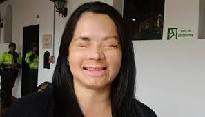 Ella es una más de las miles de mujeres a las que, ser atacadas con ácido, les ha cambiado la vida por completo